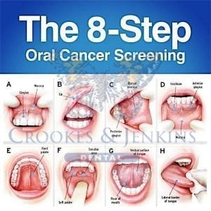 Signs And Symptoms Of Oral Cancer May Include U2013