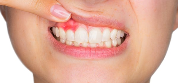 What does it mean when your gums bleed?