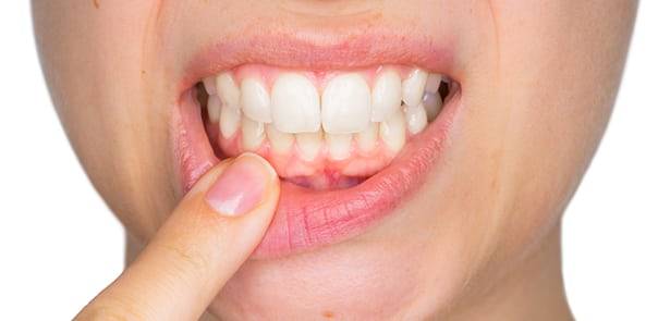 Health Risks From Untreated Gum Disease