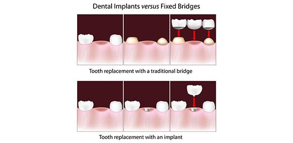 How to decide between Dental Implants and Bridges