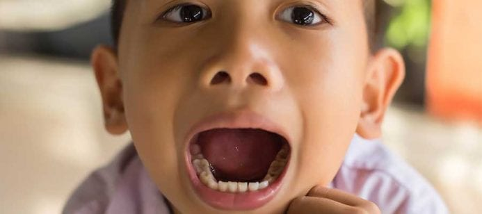 The Reason Some Children are Particularly Prone to Tooth Decay